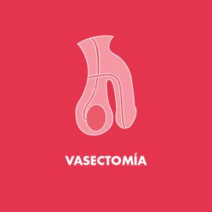 Vasectomía