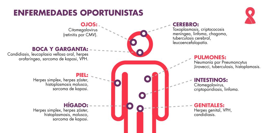 """Stella Maris Manzano: """"Aumentó la sífilis y el HIV porque el Estado dejó de ofrecer preservativos"""